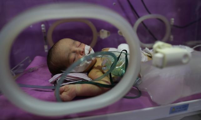 Noworodek wymagał pilnej operacji, mógł umrzeć. Lekarzom pomógł internet