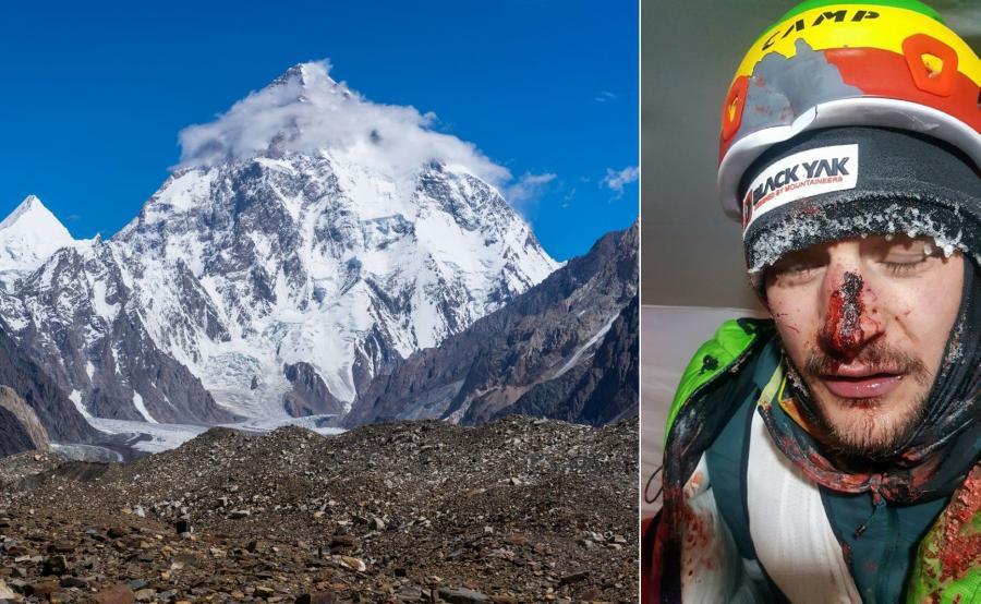 Adam Bielecki po wypadku w czasie wyprawy na K2