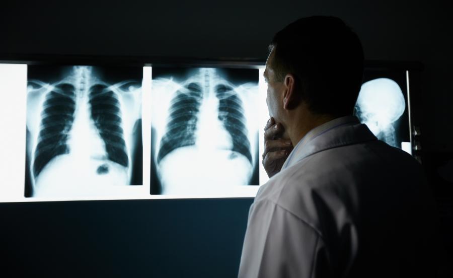 Zdjęcia rentgenowskie nowotworu płuc
