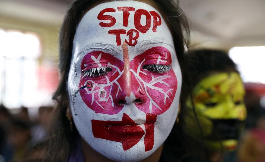 Światowy Dzień Walki z Gruźlicą. Kobieta z pomalowaną twarzą w ramach kampanii informującej o zagrożeniu gruźlicą w Indiach