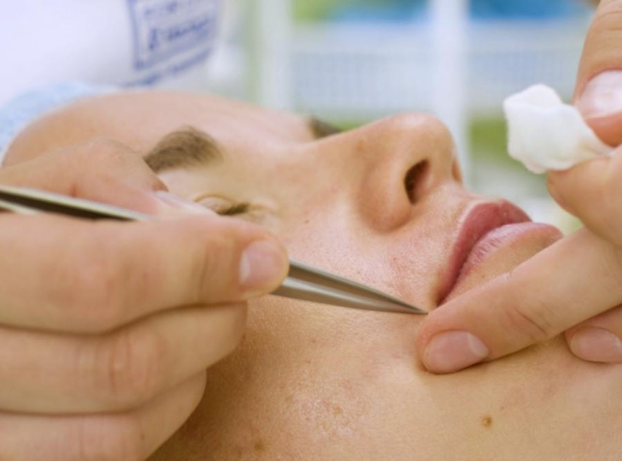 Wąsik, czyli męski problem wielu kobiet