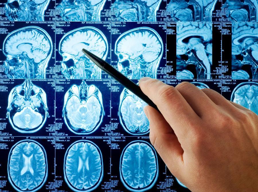 Zdjęcia z badania mózgu tomografem