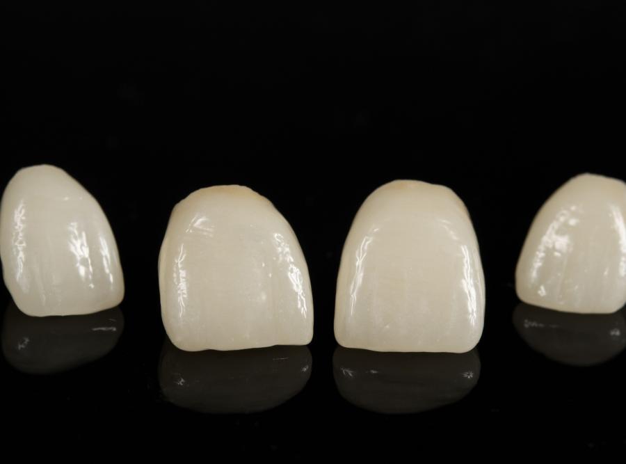 Wydłużone zęby
