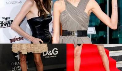 Chodzące anoreksje światowego show-biznesu