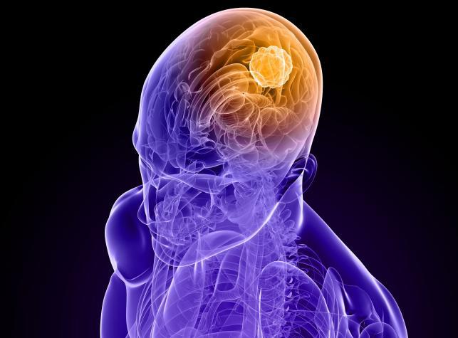 Przyczyny rozwoju guza mózgu