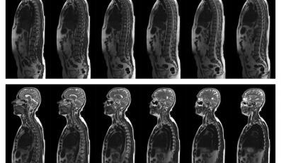 Zdjęcia przekroju ciała człowieka