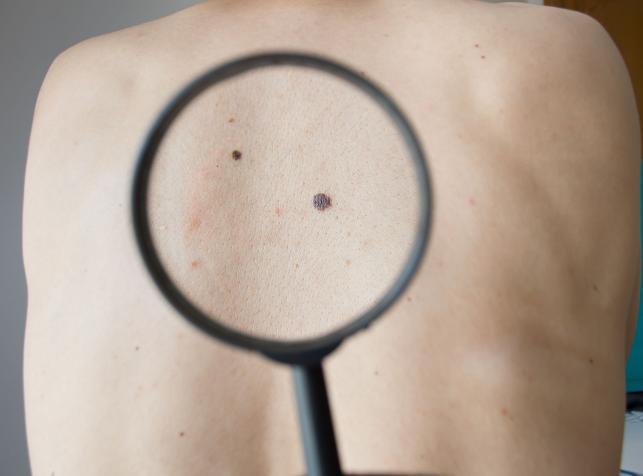 Obniża ryzyko raka skóry